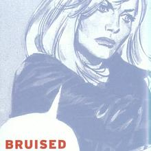 Bruised and battered by Eric Stanton
